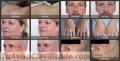 Depilación Láser IPL Femenina Facial En Málaga: Depilación láser IPL femenina facial